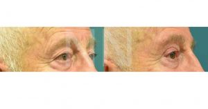 Upper-Blepharoplasty-21