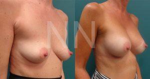 breast-augmentation111