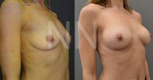 breast-augmentation20