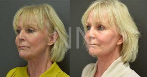 facelift necklift 2-2