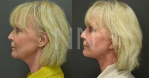 facelift necklift 2-3