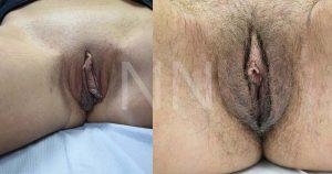 labiaplasty12-2