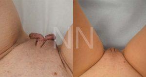labiaplasty14-1