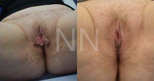 labiaplasty15-2