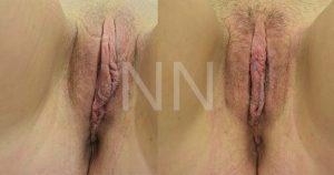 labiaplasty8-2