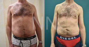 liposuction3-1