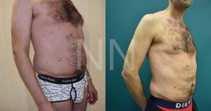 liposuction3-2
