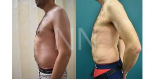 liposuction3-3