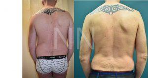 liposuction3-4