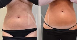 liposuction4-1