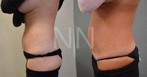liposuction4-3