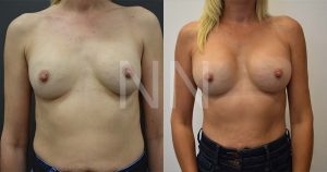 secondary breast4-1