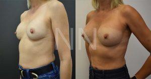 secondary breast4-2
