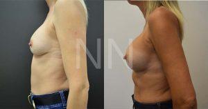 secondary breast4-3