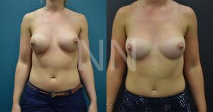 secondary breast5-1