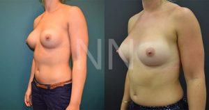 secondary breast5-2