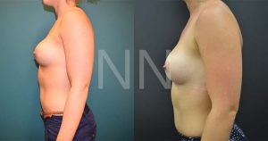 secondary breast5-3