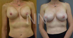 secondary breast6-1