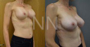 secondary breast6-2