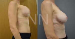 secondary breast6-3