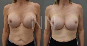 secondary breast7-1