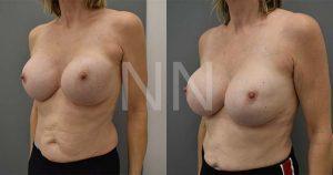secondary breast7-2