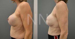 secondary breast7-3
