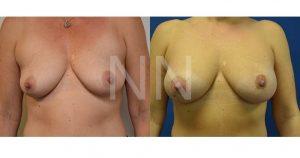 breast aug 20-1