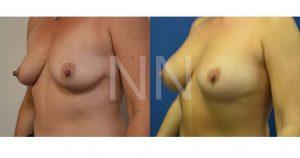 breast aug 20-2